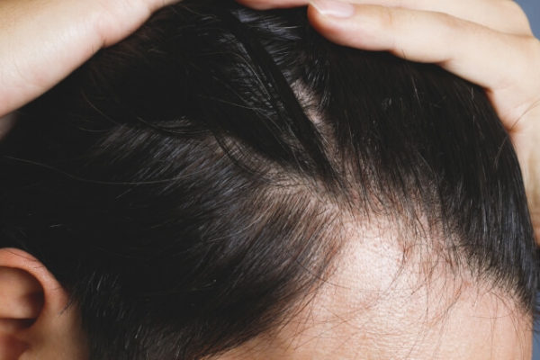 男性の髪の毛